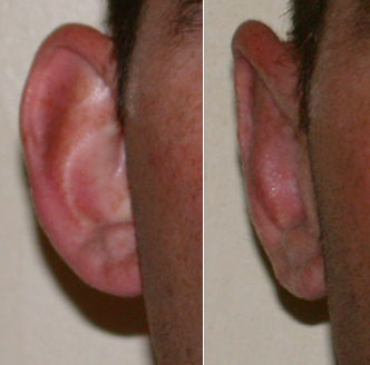 Before and after correction of bat ears