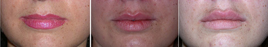 Before, after lip augmentation with filler, and then after a second filler injection for even more augmentation.