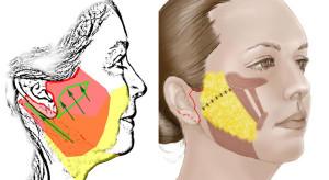 8 Neck suture