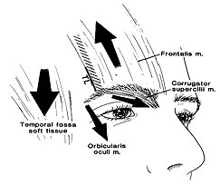 Brow aging