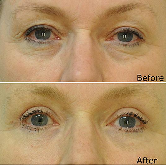 Eyelids (Blepharoplasty) - Dr Dirk Lazarus Plastic Surgeon