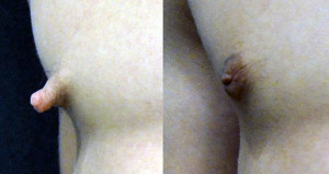Before and after nipple reduction in a male
