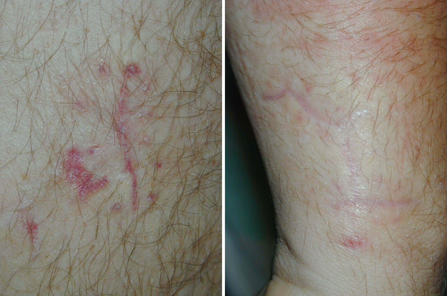 Same patient, same surgeon. No tape was applied on the left. Tape was applied on the right.