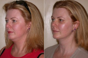 Before and after neck liposuction.