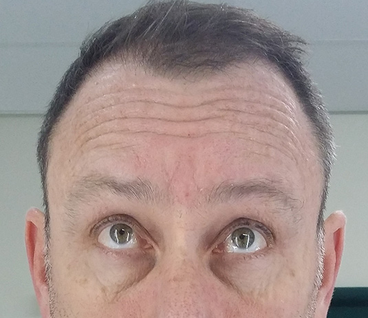 Horizontal forehead lines: 15-20 units of Botox needed for both sides.