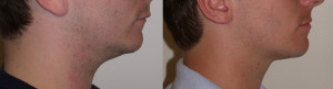 Before and after neck liposuction, male patient.
