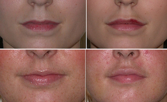 Lip augmentation with filler (above) and in another patient with fat (below).