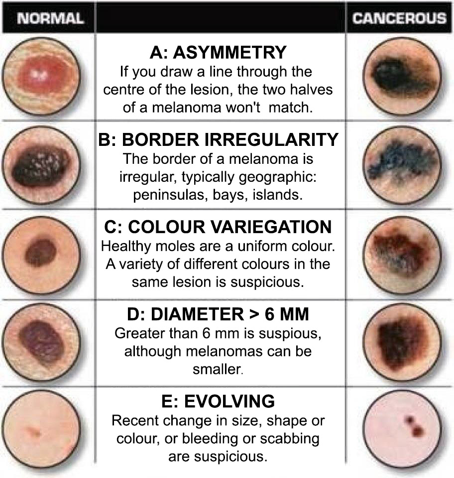 ABCDE of suspicious lesions