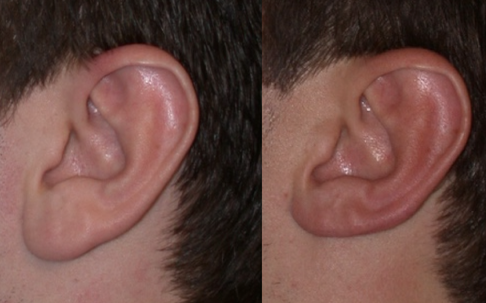 Earlobe reduction: Edge excision