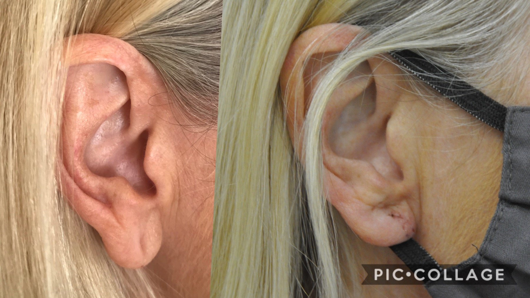 Earlobe reduction: Wedge excision